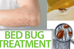 Best Bed Bug Treatment